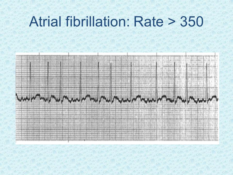 Atrial fibrillation: Rate > 350