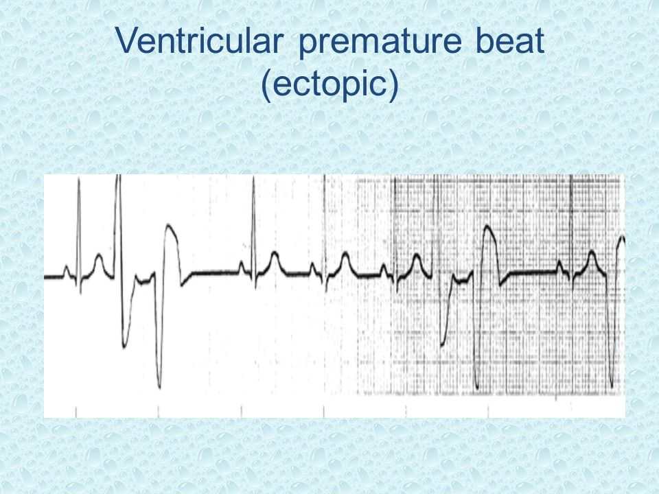 Ventricular premature beat (ectopic)