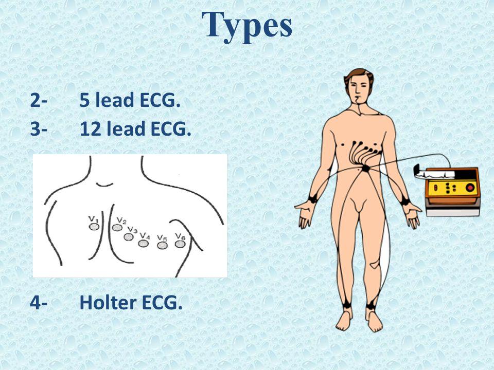2-5 lead ECG. 3-12 lead ECG. 4-Holter ECG.