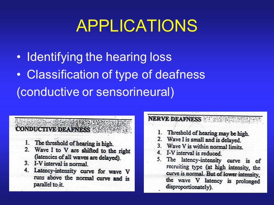 APPLICATIONS Identifying the hearing loss Classification of type of deafness (conductive or sensorineural)