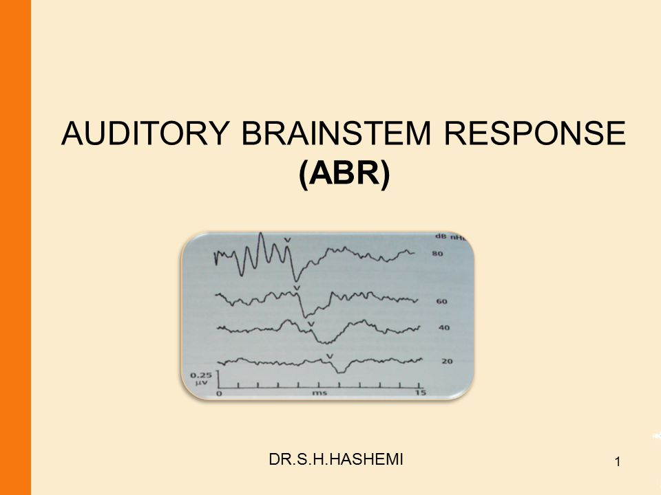 AUDITORY BRAINSTEM RESPONSE (ABR) DR.S.H.HASHEMI 1
