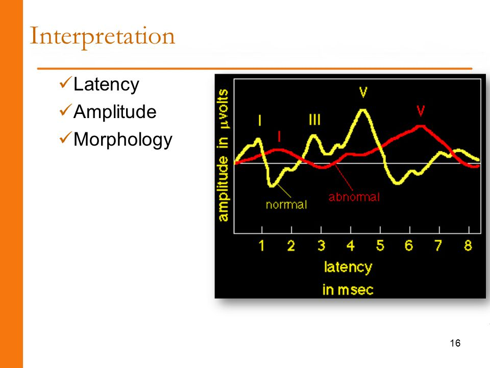 Latency Amplitude Morphology Interpretation 16