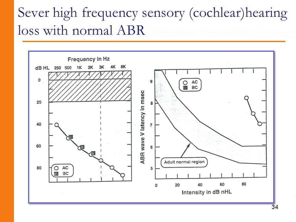 Sever high frequency sensory (cochlear)hearing loss with normal ABR 34