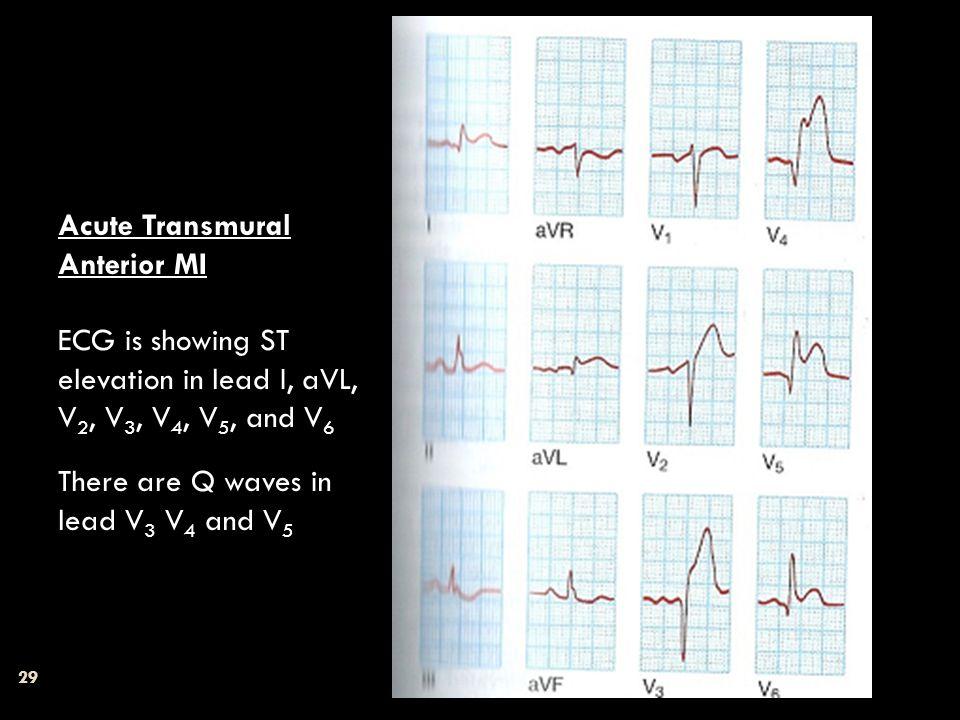 29 Acute Transmural Anterior MI ECG is showing ST elevation in lead I, aVL, V 2, V 3, V 4, V 5, and V 6 There are Q waves in lead V 3 V 4 and V 5