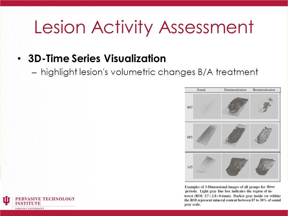 Lesion Activity Assessment 3D-Time Series Visualization – highlight lesion s volumetric changes B/A treatment