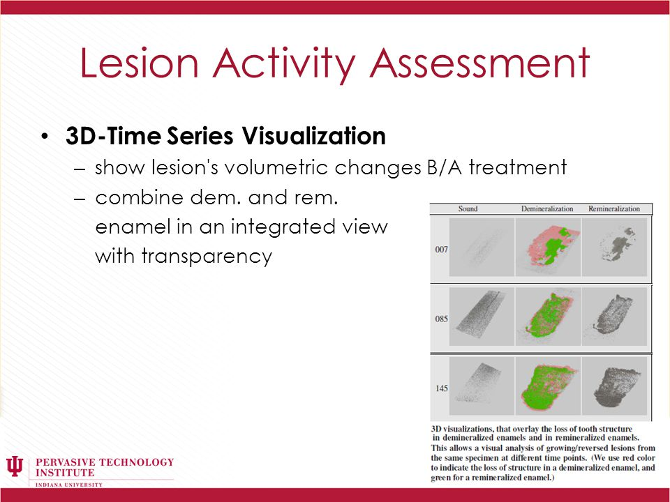 Lesion Activity Assessment 3D-Time Series Visualization – show lesion s volumetric changes B/A treatment – combine dem.