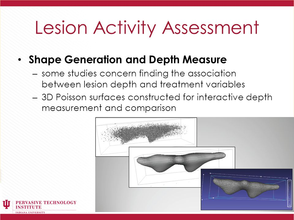 Lesion Activity Assessment Shape Generation and Depth Measure – some studies concern finding the association between lesion depth and treatment variables – 3D Poisson surfaces constructed for interactive depth measurement and comparison