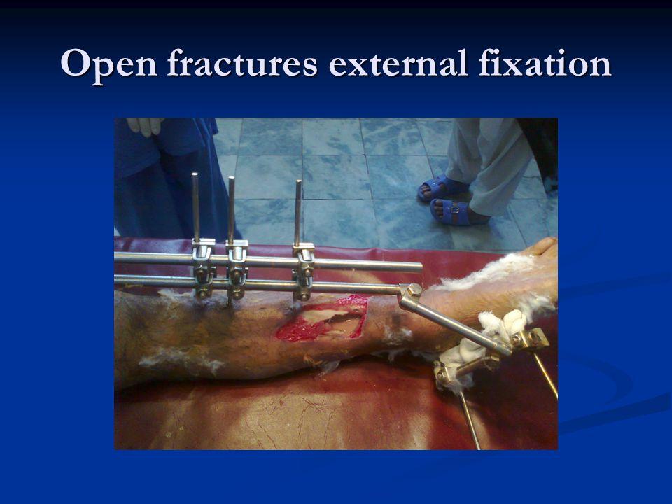 Open fractures external fixation