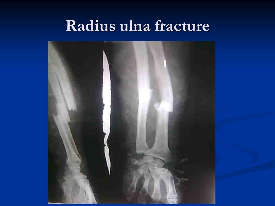 Radius ulna fracture