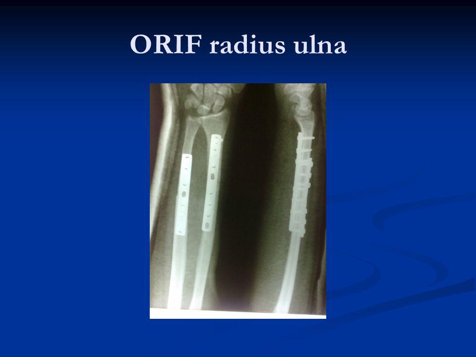 ORIF radius ulna
