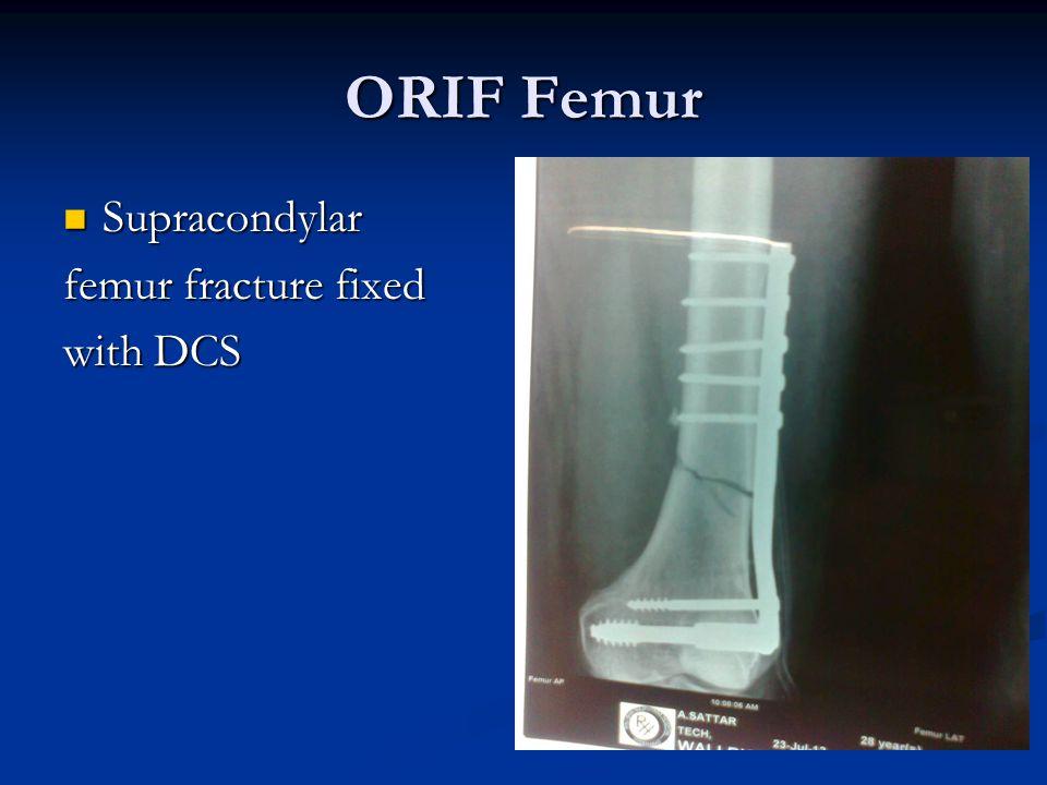 ORIF Femur Supracondylar Supracondylar femur fracture fixed with DCS