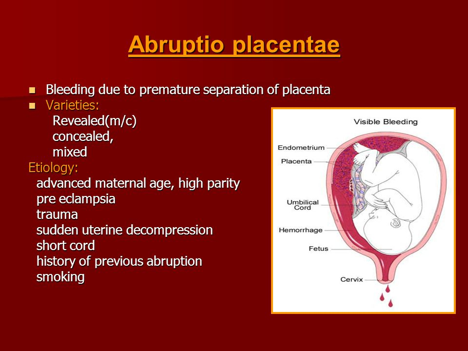 Abruptio placentae Bleeding due to premature separation of placenta Bleeding due to premature separation of placenta Varieties: Varieties: Revealed(m/c) Revealed(m/c) concealed, concealed, mixed mixedEtiology: advanced maternal age, high parity advanced maternal age, high parity pre eclampsia pre eclampsia trauma trauma sudden uterine decompression sudden uterine decompression short cord short cord history of previous abruption history of previous abruption smoking smoking