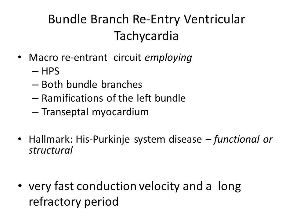 Macro re-entrant circuit employing – HPS – Both bundle branches – Ramifications of the left bundle – Transeptal myocardium Hallmark: His-Purkinje syst