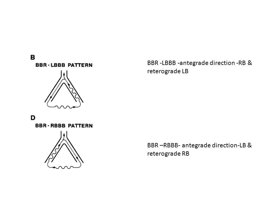 BBR -LBBB -antegrade direction -RB & reterograde LB BBR –RBBB- antegrade direction-LB & reterograde RB