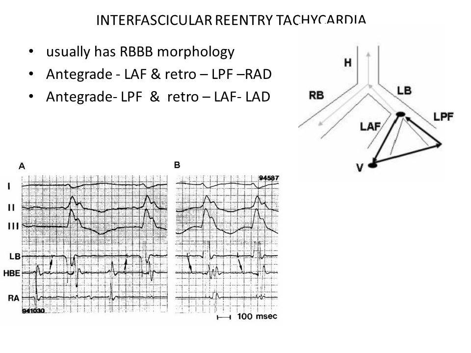 INTERFASCICULAR REENTRY TACHYCARDIA usually has RBBB morphology Antegrade - LAF & retro – LPF –RAD Antegrade- LPF & retro – LAF- LAD