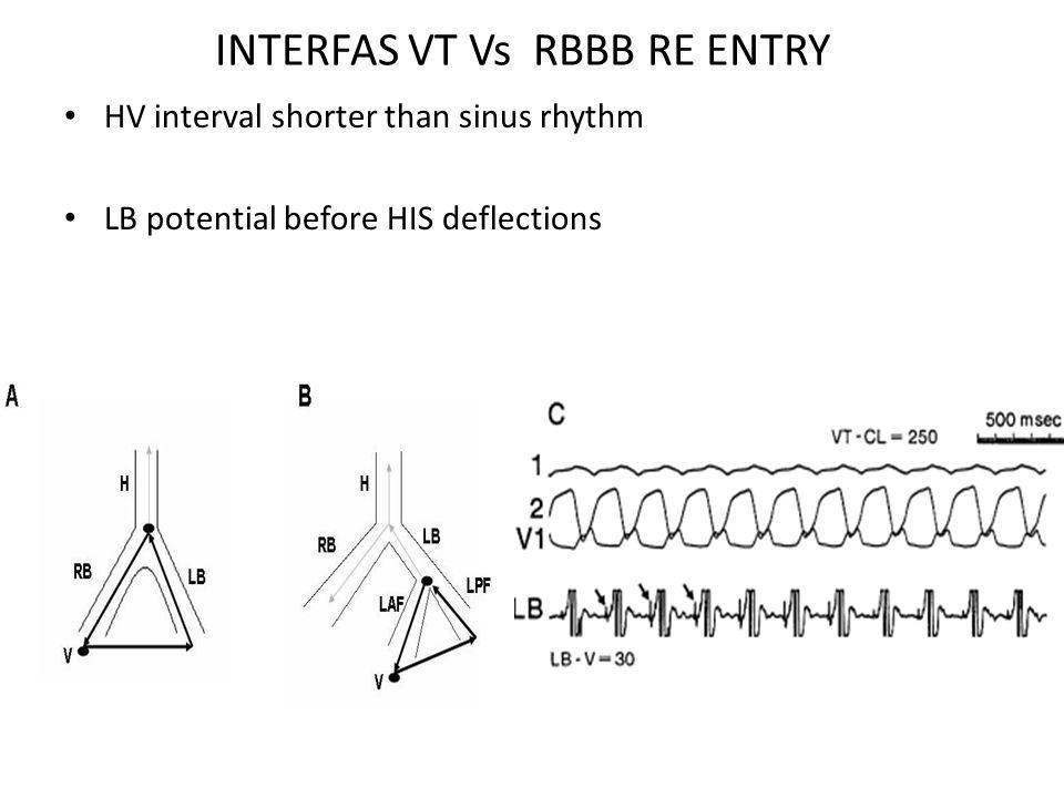 INTERFAS VT Vs RBBB RE ENTRY HV interval shorter than sinus rhythm LB potential before HIS deflections