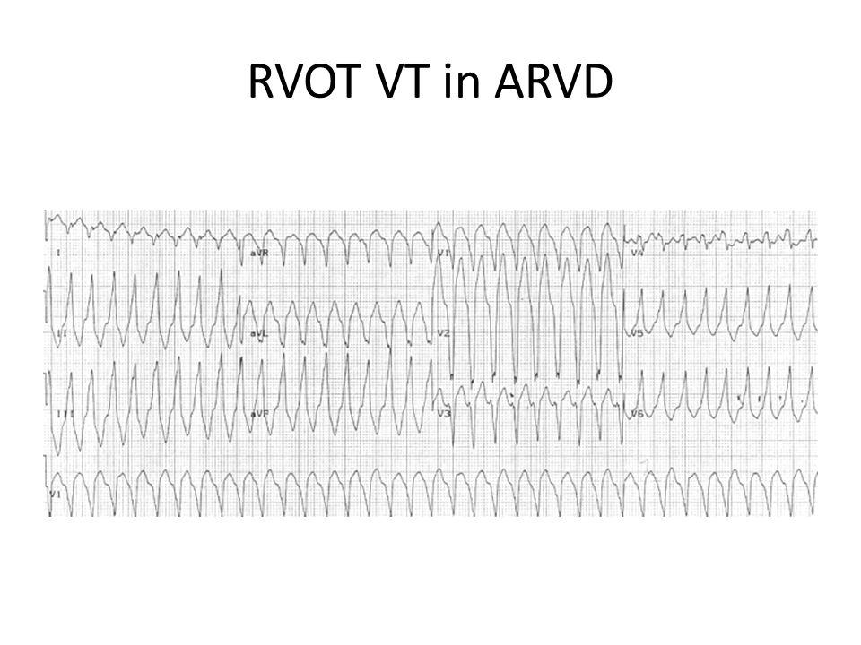 RVOT VT in ARVD