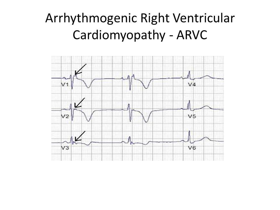 Arrhythmogenic Right Ventricular Cardiomyopathy - ARVC