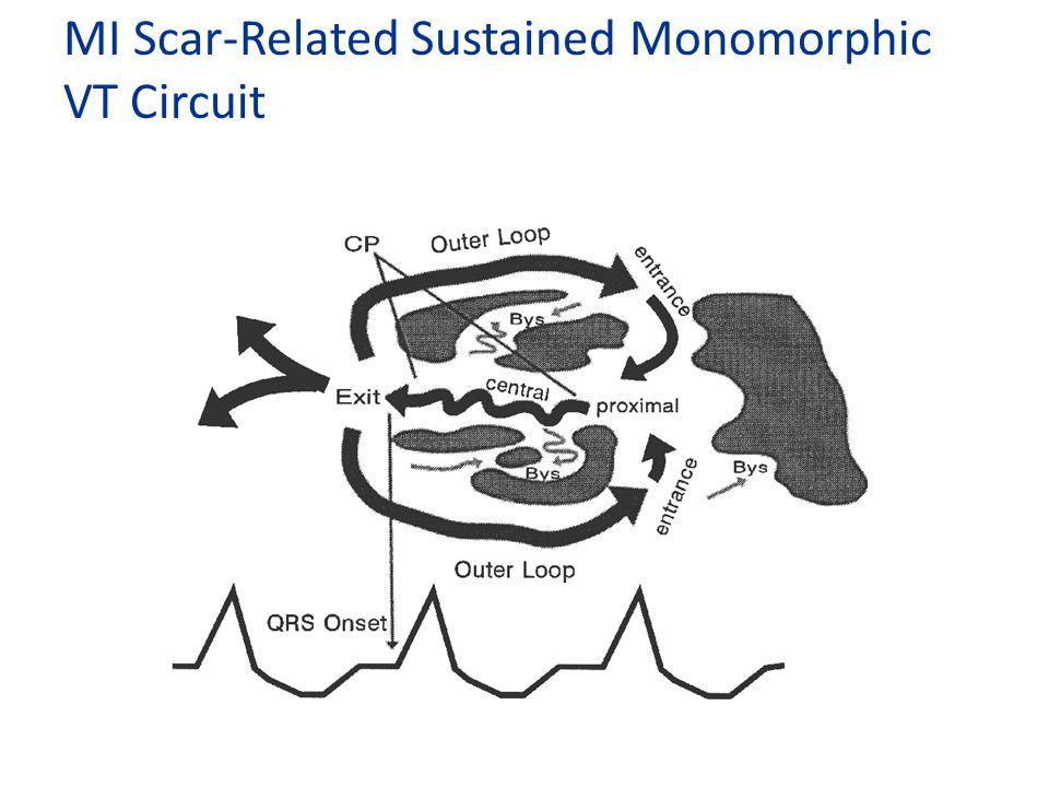 MI Scar-Related Sustained Monomorphic VT Circuit