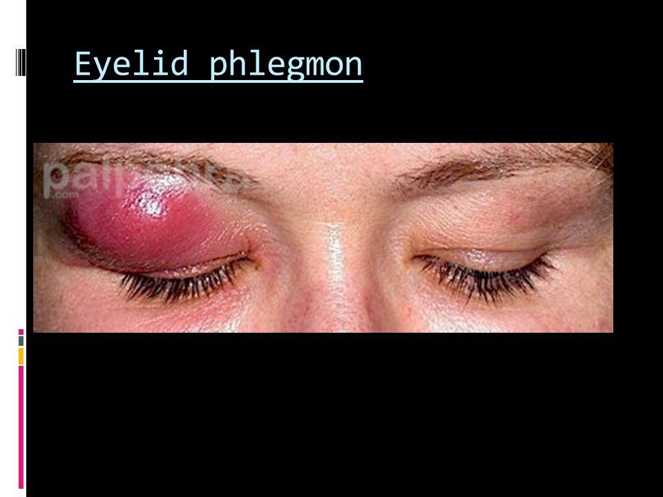 Eyelid phlegmon
