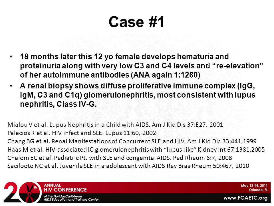 "Case #1 18 months later this 12 yo female develops hematuria and proteinuria along with very low C3 and C4 levels and ""re-elevation"" of her autoimmune"