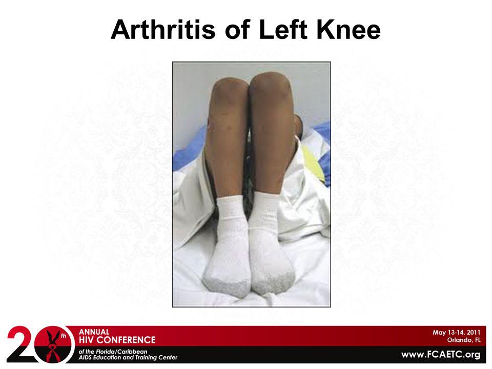 Arthritis of Left Knee
