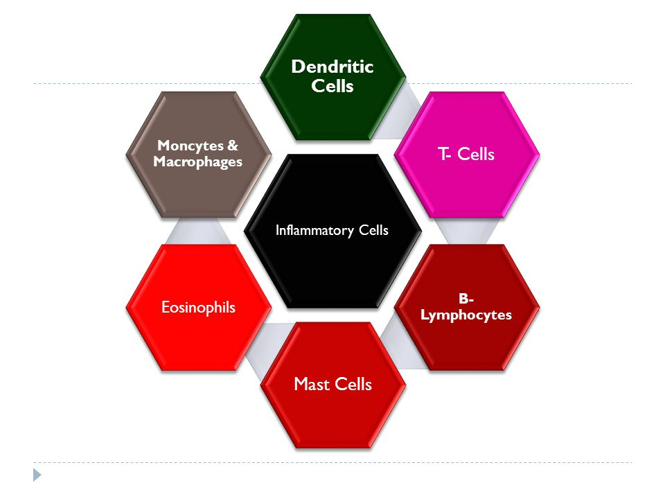 Inflammatory Cells Dendritic Cells T- Cells B- Lymphocytes Mast Cells Eosinophils Moncytes & Macrophages