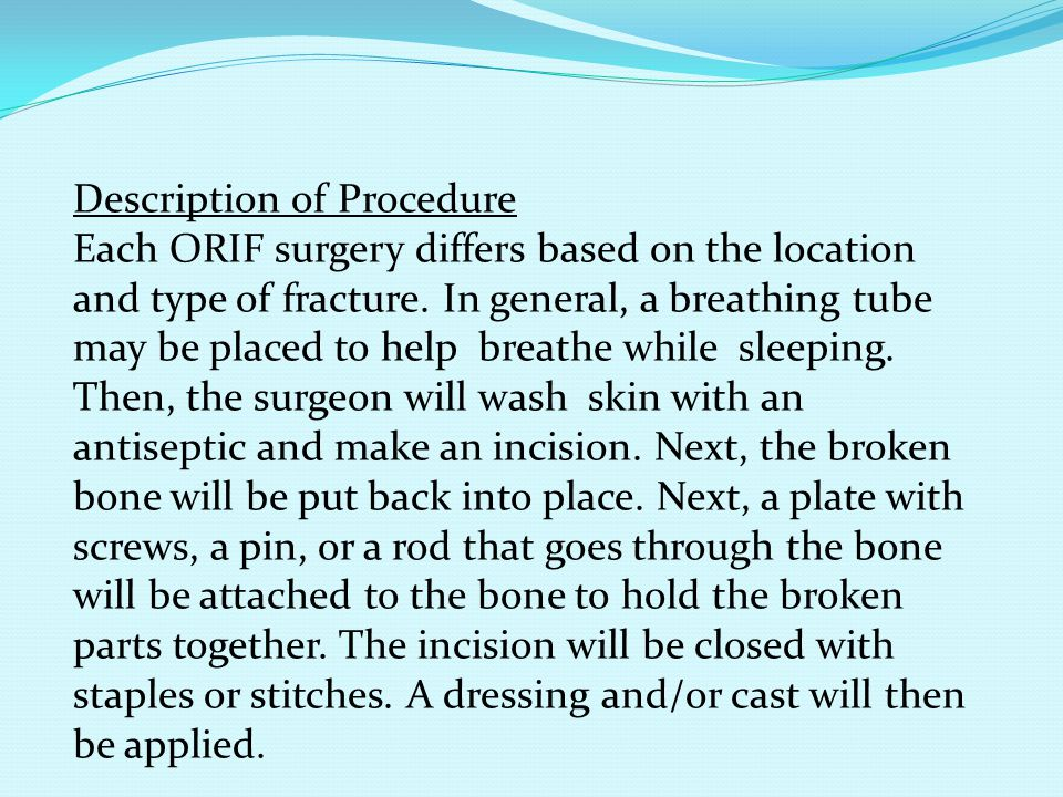 Description of Procedure Each ORIF surgery differs based on the location and type of fracture. In general, a breathing tube may be placed to help brea
