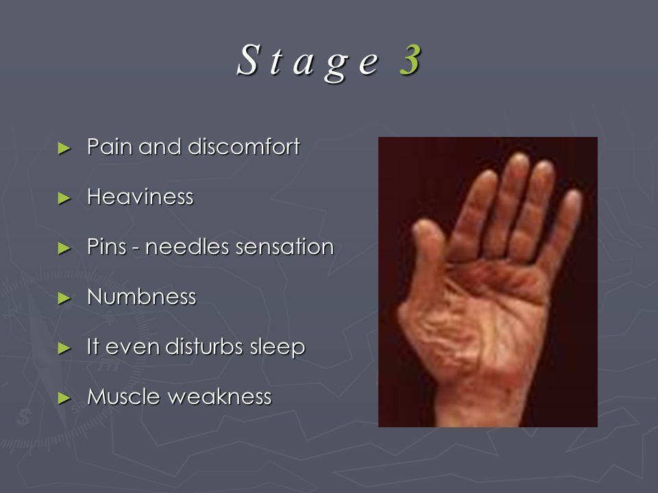 S t a g e 3 ► Pain and discomfort ► Heaviness ► Pins - needles sensation ► Numbness ► It even disturbs sleep ► Muscle weakness
