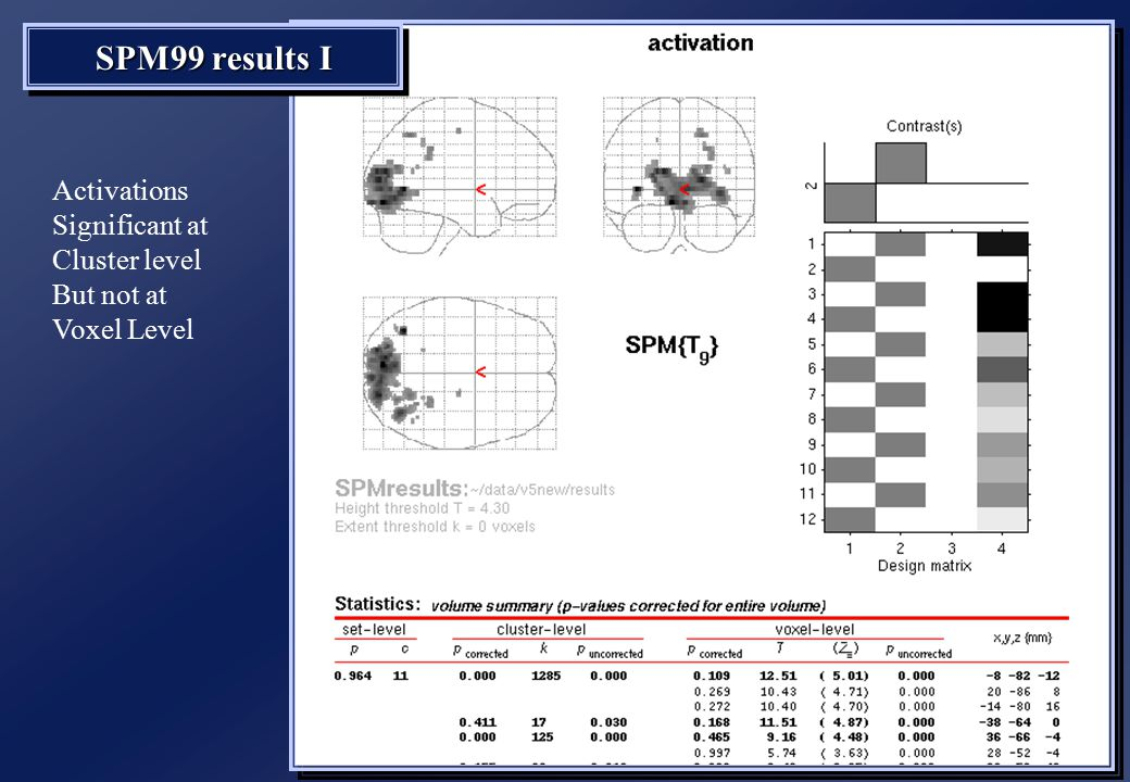 SPM99 results I Activations Significant at Cluster level But not at Voxel Level