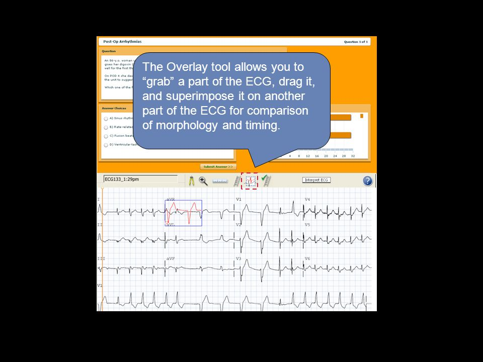 The Overlay tool allows you to grab a part of the ECG, drag it, and superimpose it on another part of the ECG for comparison of morphology and timing.