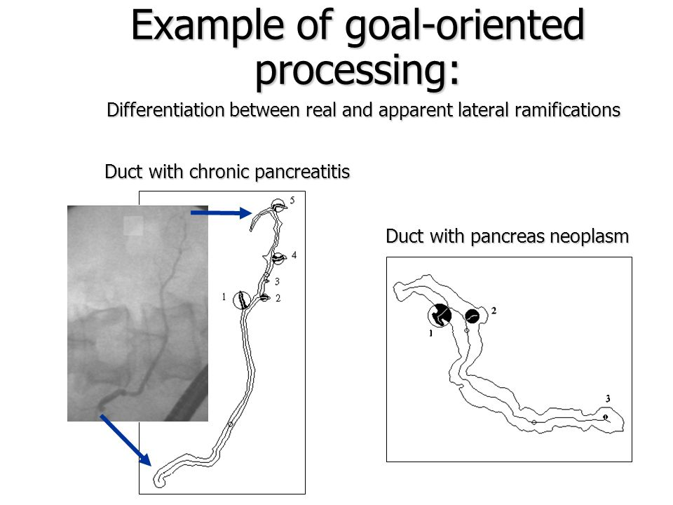 Analysis of Lateral Ramifications Determination of parts of pancreatic duct Detection of apparent ramifications 28% 45% 27%