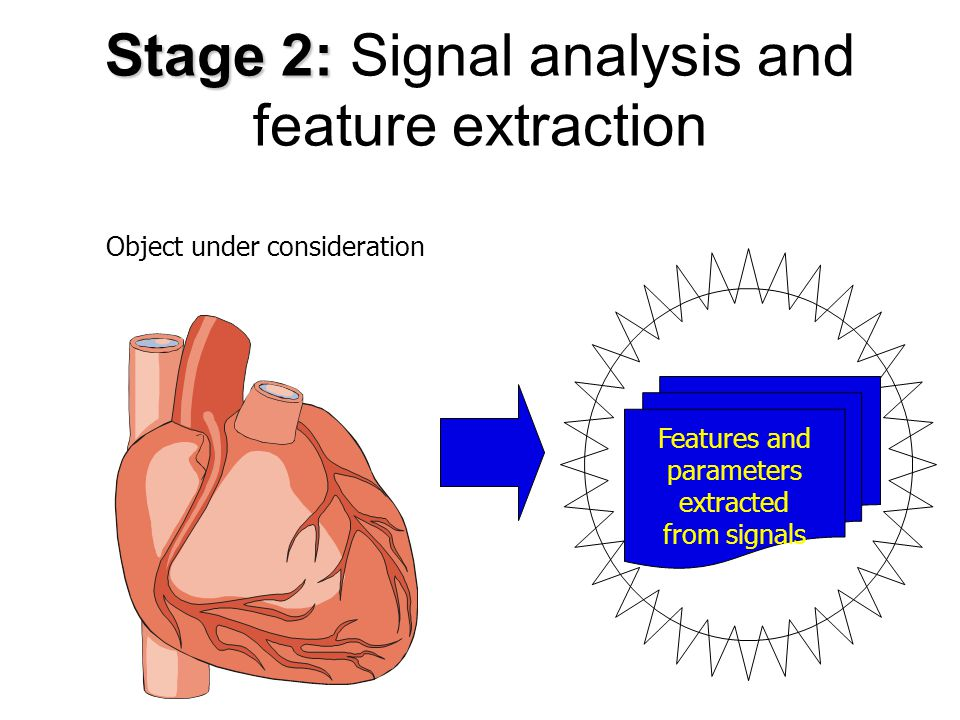 Stage 1: Stage 1: Preprocessing (mainly filtration) of signals Object under consideration Signals cleaned and enhanced