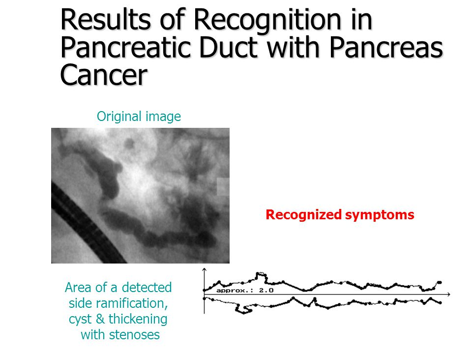 Results of Recognition in Pancreatic Duct with Chronic Pancreatitis Area of a detected side ramification, thickenings & stenoses Original image Recognized symptoms