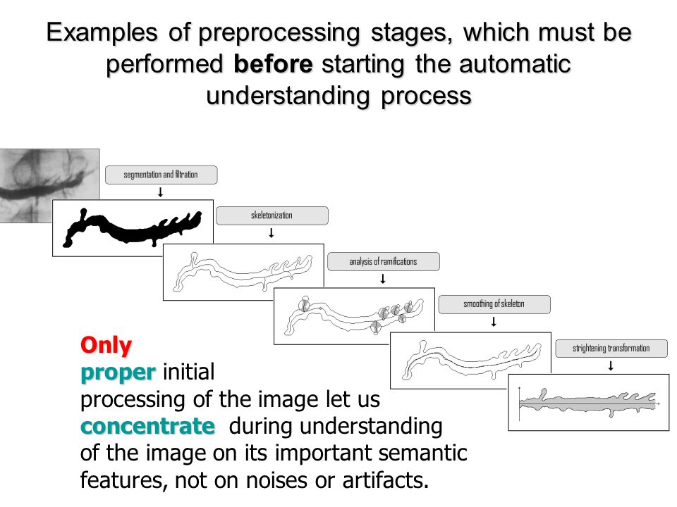 Stages of Preliminary Image Processing n Segmentation and filtration n Skeletonisation n Analysis of real and verification of apparent skeleton ramifications n Smoothing of skeleton n Straightening transformation