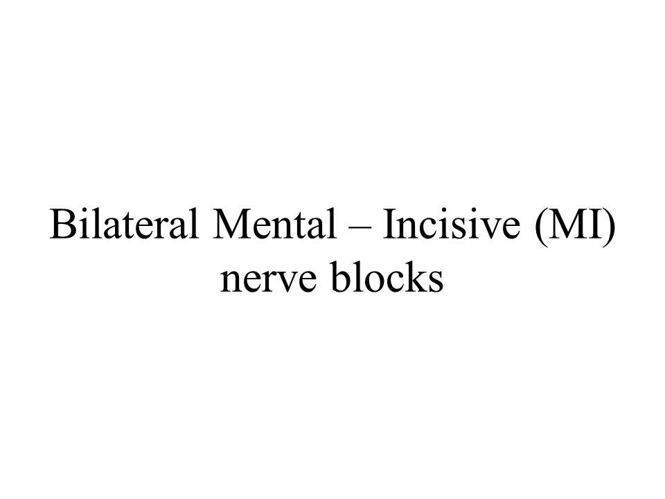 Bilateral Mental – Incisive (MI) nerve blocks