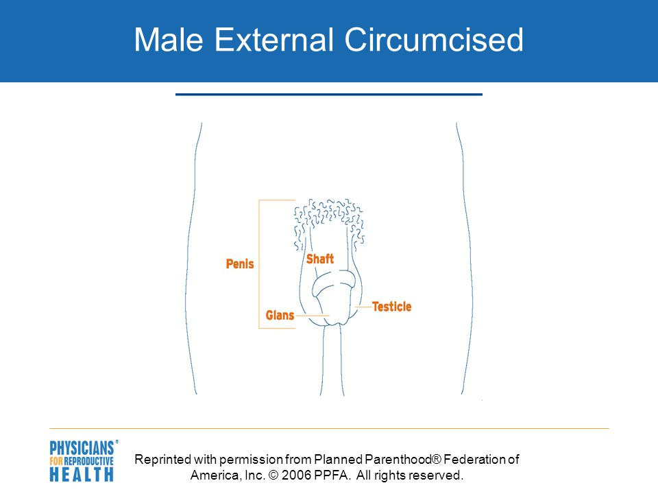  Male External Circumcised Reprinted with permission from Planned Parenthood® Federation of America, Inc.