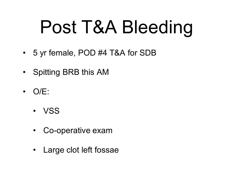 Post T&A Bleeding 5 yr female, POD #4 T&A for SDB Spitting BRB this AM O/E: VSS Co-operative exam Large clot left fossae