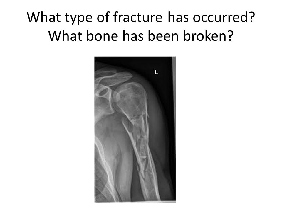 What type of fracture has occurred? What bone has been broken?