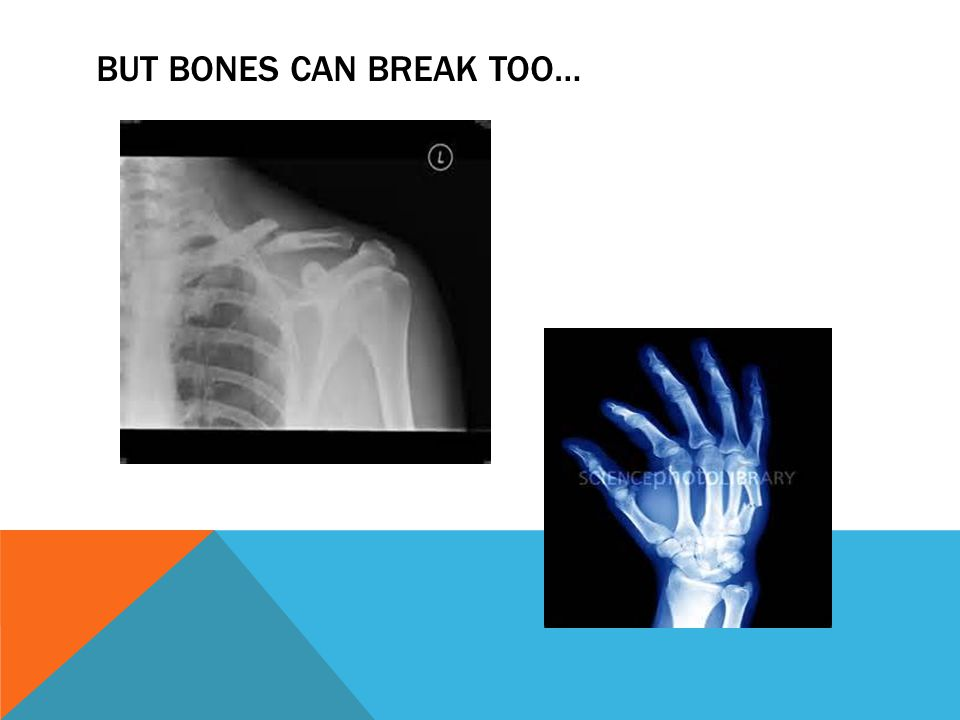 BUT BONES CAN BREAK TOO…