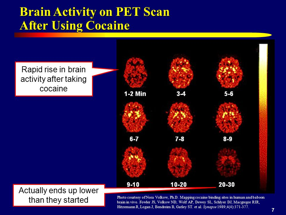 7 Brain Activity on PET Scan After Using Cocaine Photo courtesy of Nora Volkow, Ph.D.