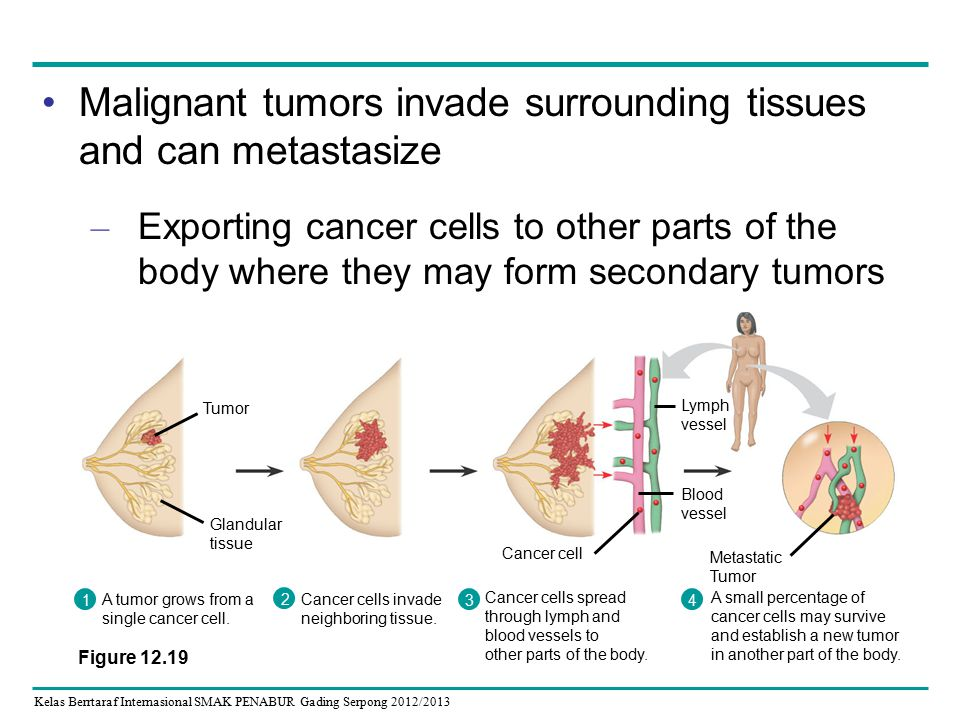Kelas Berrtaraf Internasional SMAK PENABUR Gading Serpong 2012/2013 Malignant tumors invade surrounding tissues and can metastasize – Exporting cancer cells to other parts of the body where they may form secondary tumors Cancer cells invade neighboring tissue.