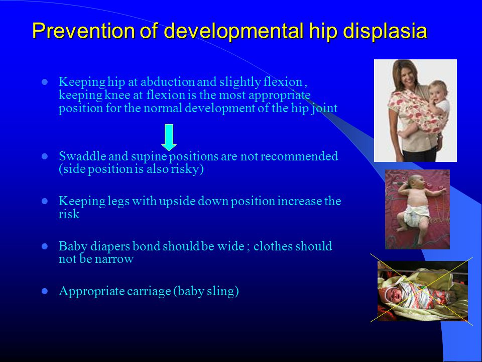 Prevention of developmental hip displasia Keeping hip at abduction and slightly flexion, keeping knee at flexion is the most appropriate position for the normal development of the hip joint Swaddle and supine positions are not recommended (side position is also risky) Keeping legs with upside down position increase the risk Baby diapers bond should be wide ; clothes should not be narrow Appropriate carriage (baby sling)