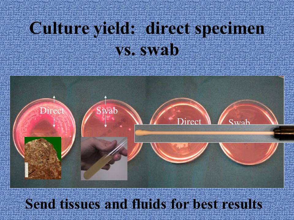 Send tissues and fluids for best results Limitations of swabs TB and fungus are not detected from swabs Anaerobes grow poorly from swabs 15 cc 1.5 cc 0.15 ml Limitations of swabs TB and fungus are not detected from swabs Anaerobes grow poorly from swabs