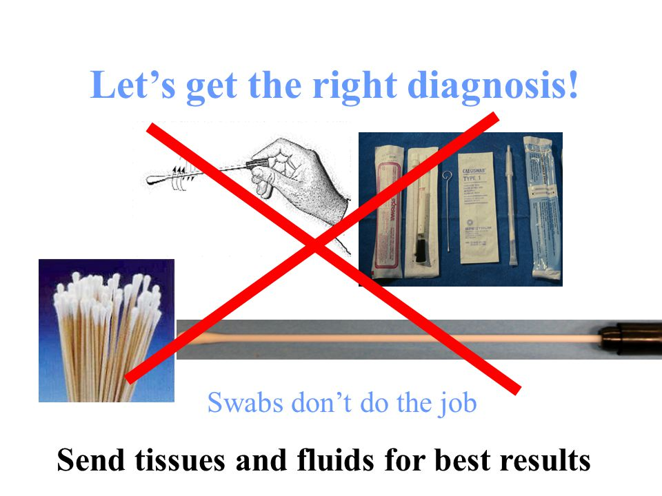 Send tissues and fluids for best results An effective culture from a sterile site requires 5 plates, a broth and a gram stain, if you have 10 bacteria on the swab what are the chances that you will get the result you are looking for?