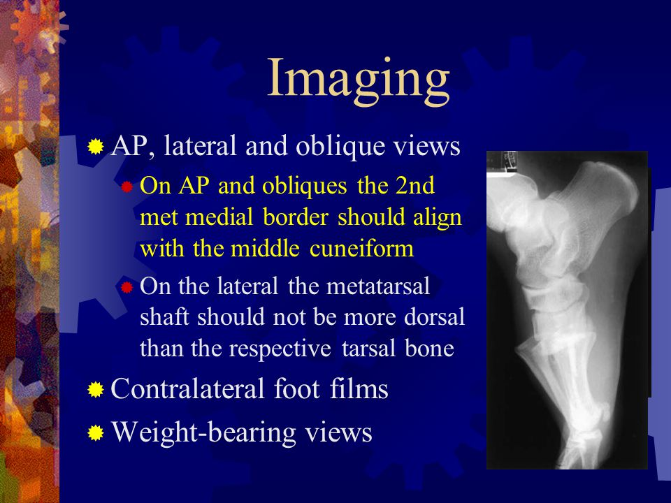 Imaging  AP, lateral and oblique views  On AP and obliques the 2nd met medial border should align with the middle cuneiform  On the lateral the met