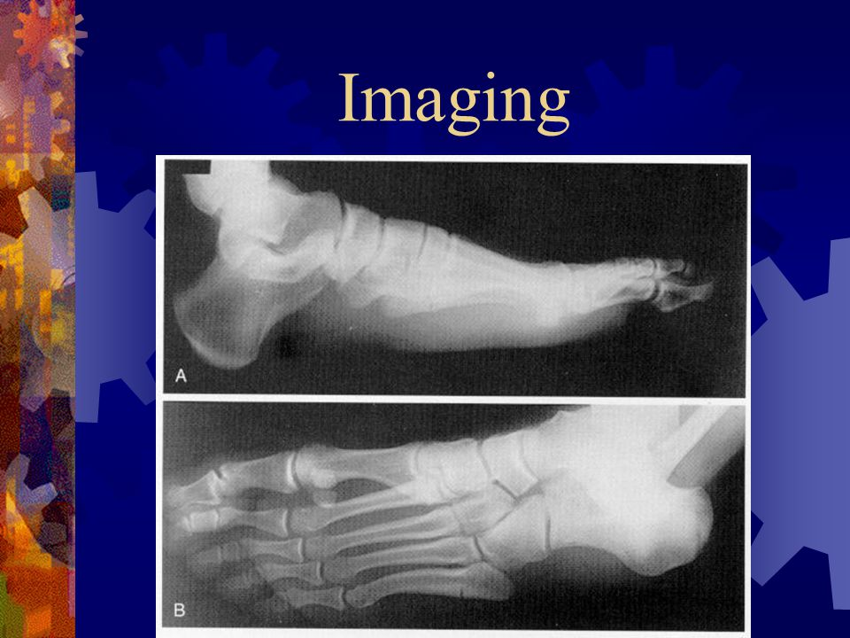 Imaging  AP, lateral and oblique radiographs  Avulsion fractures are almost always transverse  In a Jones fracture the fracture line is transverse