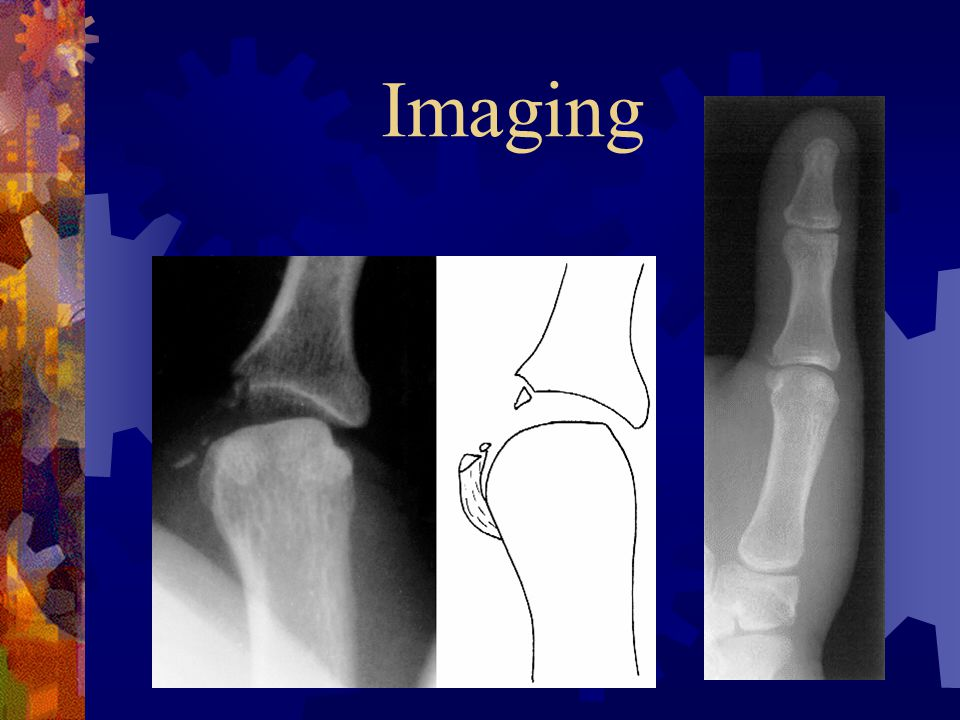 Imaging  Thumb PA, lateral and oblique radiographs  Stress radiographs in equivocal cases  MRI may r/o Stener lesion