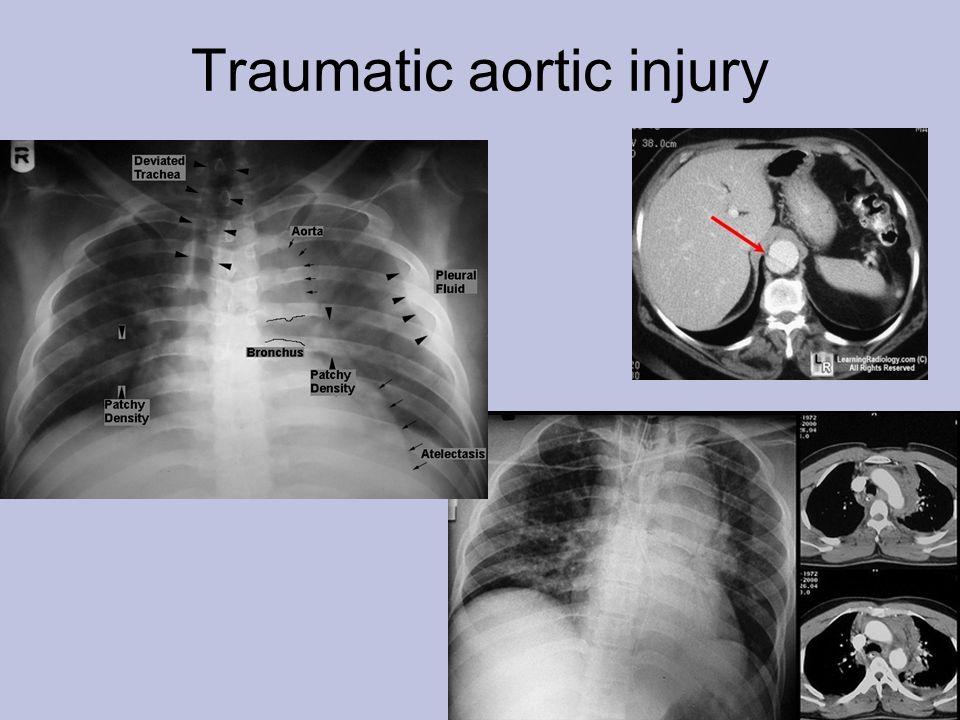 Traumatic aortic injury