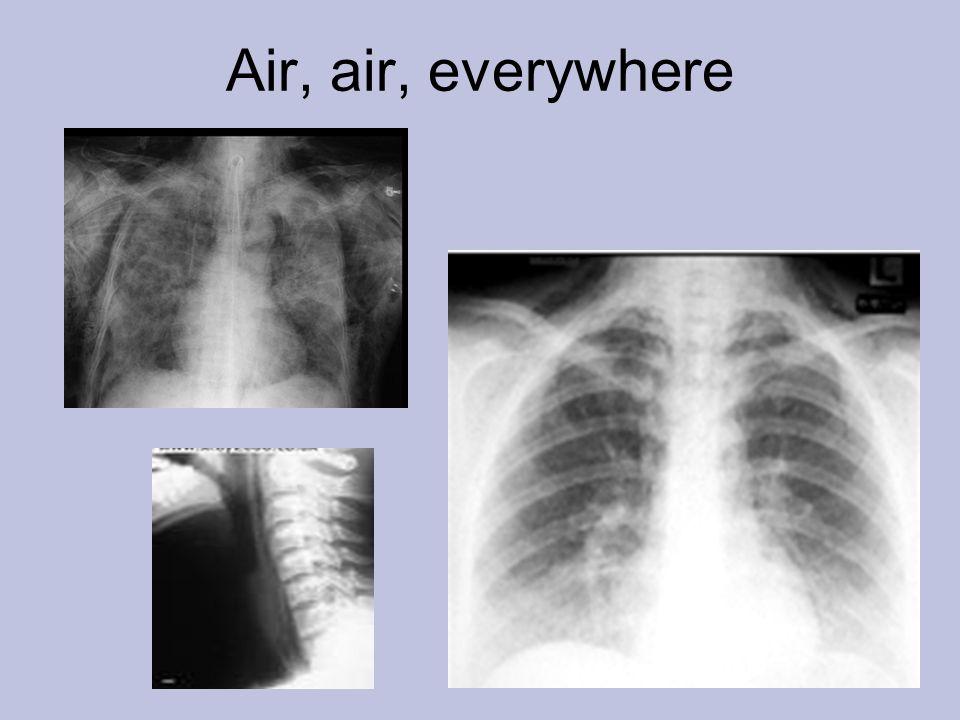 Air, air, everywhere